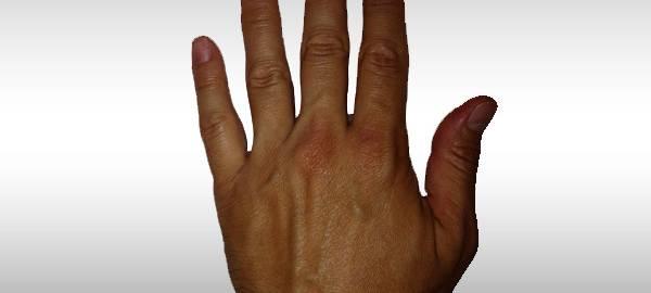 swollen-hands